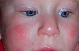 Аллергия на яйца фото