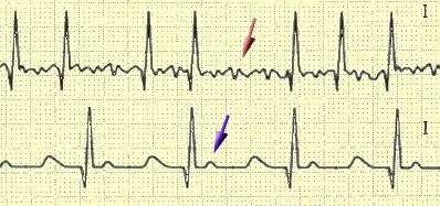 Аритмия сердца диагностика