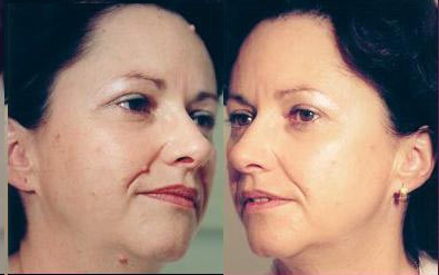Бородавки на лице фото до и после
