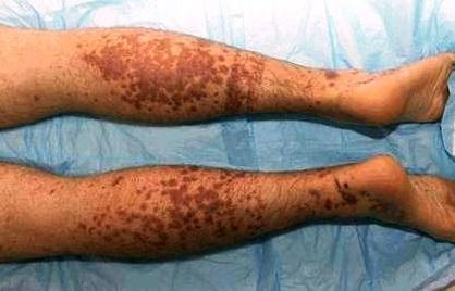 геморрагический тромбоваскулит этиология патогенез