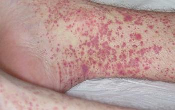 Геморрагический васкулит симптомы