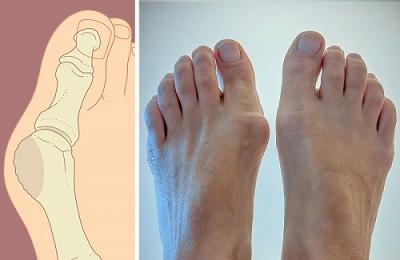 Косточка на большом пальце ноги фиксатор