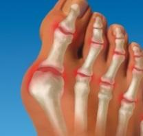 Что делать если болит косточка на ноге около большого пальца