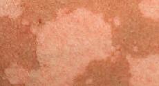 Розовый лишай: фото, симптомы, лечение у человека