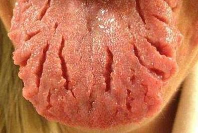 Трещины на языке