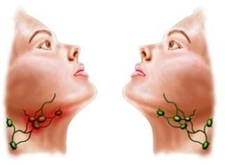 Увеличение подчелюстных лимфоузлов лечение