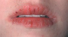 Как вылечить заеды в уголках рта у беременных 99