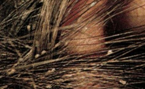 вши на волосах фото