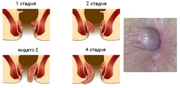 Что будет если лопнет геморроидальный узел