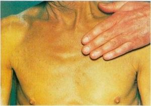 Цирроз печени: симптомы и лечение, прогноз для жизни