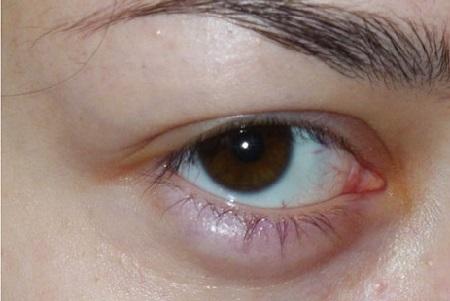ячмень на глазу как выглядит