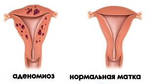 Аденомиоз матки лечение