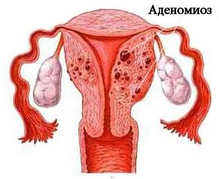 Аденомиоз матки причины