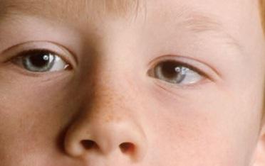 Что такое амблиопия у детей