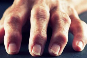 Артрит пальцев рук причины