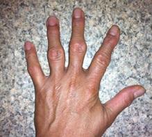 Артрит пальцев рук: симптомы, лечение, фото — Proevents.com.ua