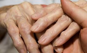 Изображение - Увеличение суставов пальцев рук заболевание %D0%90%D1%80%D1%82%D1%80%D0%B8%D1%82-%D0%BF%D0%B0%D0%BB%D1%8C%D1%86%D0%B5%D0%B2-%D1%80%D1%83%D0%BA