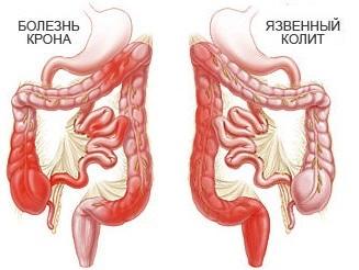 Колит кишечника причины