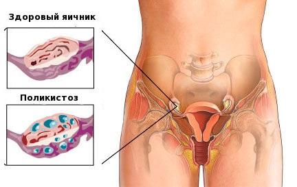 Поликистоз яичников причины
