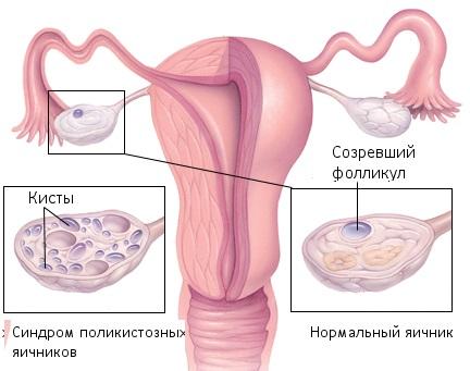 Поликистоз яичников симптомы