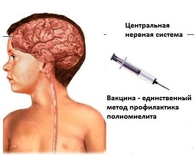 Полиомиелит лечение