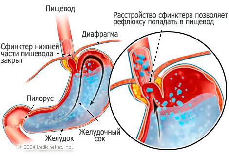 Рефлюкс эзофагит причины