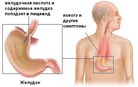 Рефлюкс эзофагит симптомы