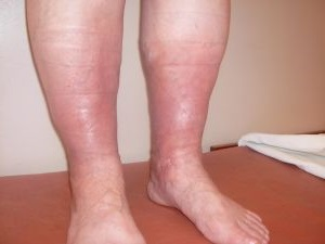 Тромбофлебит глубоких вен лечение