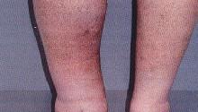 Тромбофлебит глубоких вен нижних конечностей — фото, симптомы и лечение