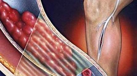 Тромбофлебит нижних конечностей лечение