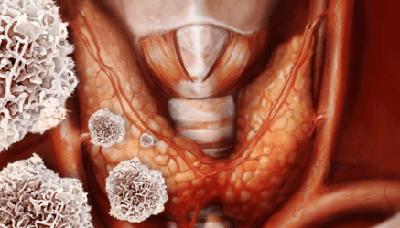 Аутоиммунный тиреоидит щитовидной железы, что это такое? Симптомы и лечение