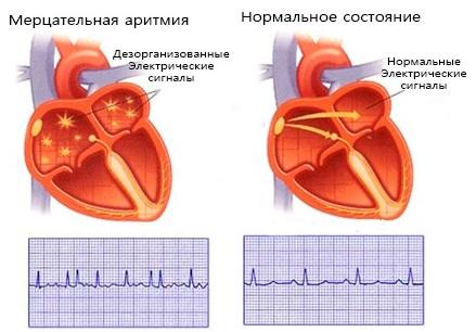 Мерцательная аритмия сердца - лечение, симптомы, причины и последствия опасной для жизни болезни, мерцательная аритмия