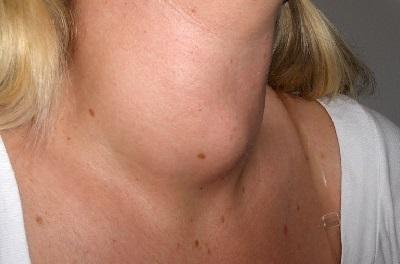 Аутоиммунный тиреоидит щитовидной железы у мужчин