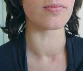 прием йода при гипотиреозе во время беременности