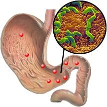 образец диеты при эрозии желудка