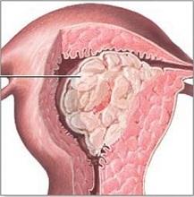 беременность во время климакса у женщин признаки