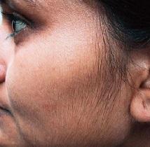 Избыточный рост волос на теле у женщин