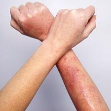 Дерматит на руках: фото, лечение и причины