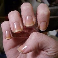 Почему желтеют ногти на руках у женщин и мужчин: причина