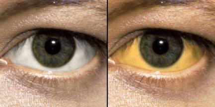 Sindrom ZHilbera foto - Синдром Жильбера — что это такое и как лечить?