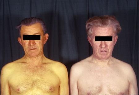 Sindrom ZHilbera kak vyglyadit chelovek - Синдром Жильбера — что это такое и как лечить?
