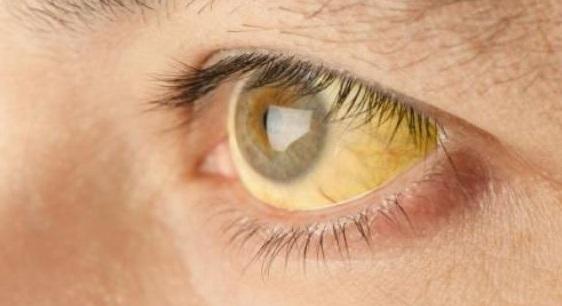 Sindrom ZHilbera simptomy - Синдром Жильбера — что это такое и как лечить?