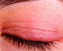 Приливы при климаксе лечение препараты