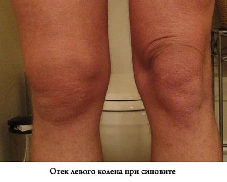 Синовит коленного сустава при псориатическом артрите фото