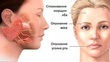 Невропатия лицевого нерва лечение